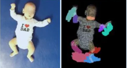 Analysis of motor development within the first year of life: 3-{D} motion tracking without markers for early detection of developmental disorders