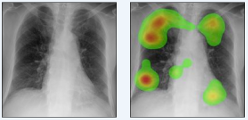 Role of expertise and contralateral symmetry in the diagnosis of pneumoconiosis: an experimental study